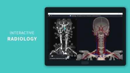 Screenshot 3 de Complete Anatomy 2021 para windows