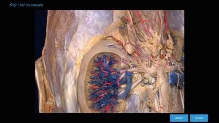 Screenshot 8 de 3D Organon Anatomy - Enterprise Edition para windows